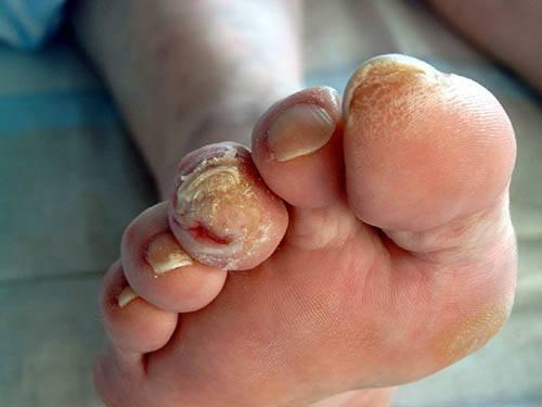 Сахарный диабет ноги лечение