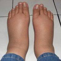 Ноги при сахарном диабете