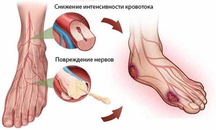 Симптомы и лечение диабетической стопы