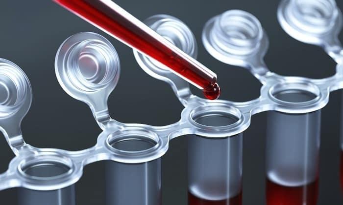 При подозрении на сахарный диабет у ребенка необходимо пройти лабораторное обследование: сдать анализ крови