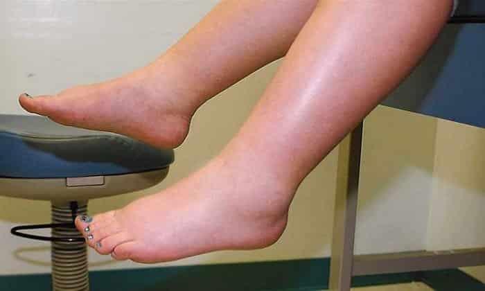 При сахарном диабете может появится отечность ног