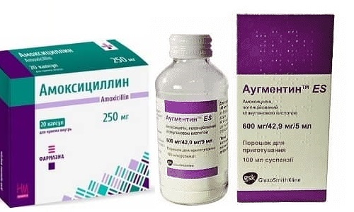 Для лечения болезней, вызванных инфекционными процессами, применяются Аугментин или Амоксициллин