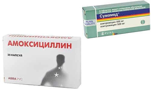 Амоксициллин и Сумамед борются с бактериальными инфекциями