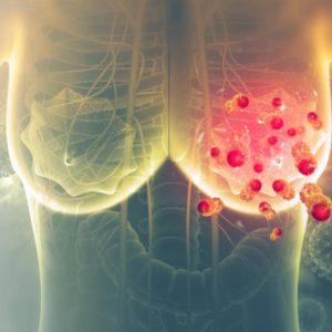 Рак груди 4 степени: характеристика заболевания